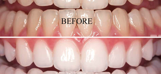 Advice That Works When You Want To Whiten Your Teeth
